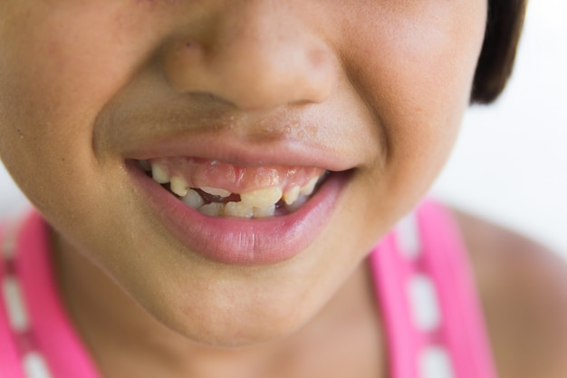 Little girl with a teeth broken and rotten