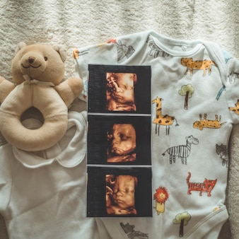 Little hand made baby clothes. photo of ultrasound. newborn clothes. unity, protection and happiness