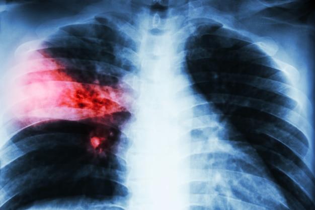 Lobar肺炎。胸部x線:結核による右中葉の浸潤