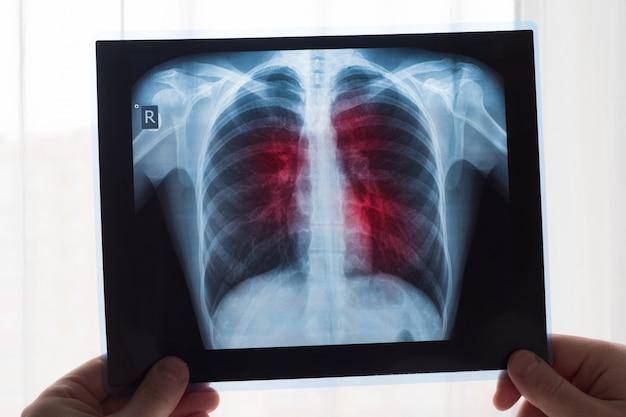 Концепция рентгенографии легких. врач-рентгенолог осматривает рентгенограмму легких у пациента с раком легких или пневмонией.