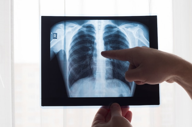 Lung radiography concept. radiology doctor examining at chest x ray film of patient lung cancer or pneumonia.