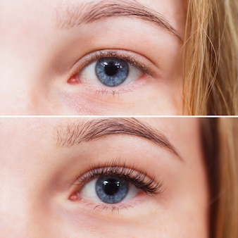 Macro photo of female eye before and after eyelash extension