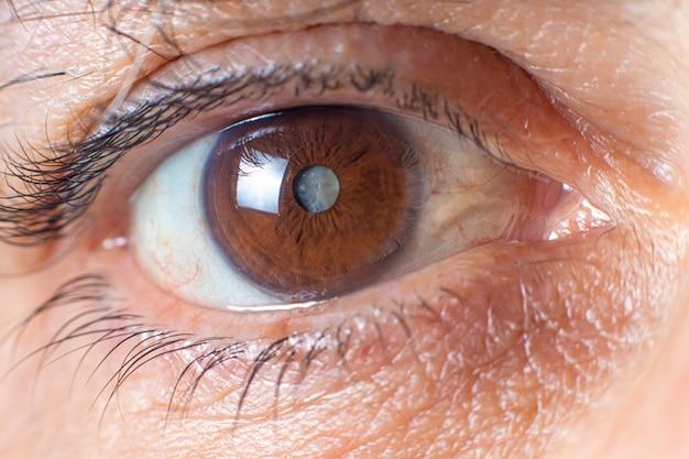 Макрофотография человеческого глаза - помутнение хрусталика от катаракты