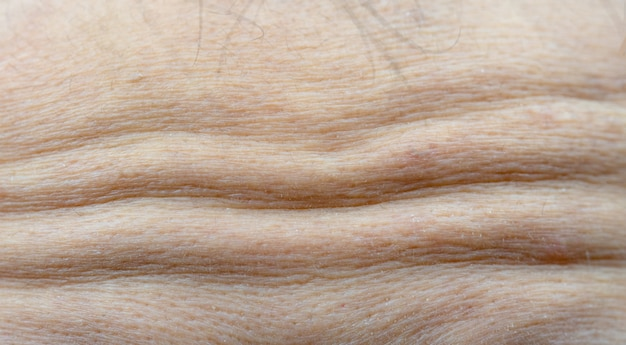 Macro shot detail of forehead wrinkles from emotional expression