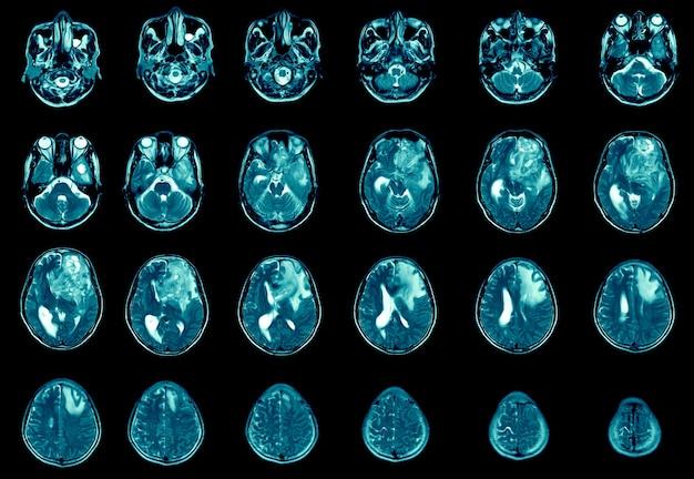 자기공명영상 왼쪽 전두엽 부종 발견 교모세포종 뇌전이