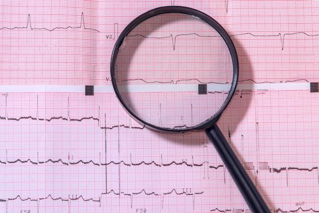 Увеличительное стекло лежат на листе с электрокардиограммой. медицинская концепция.