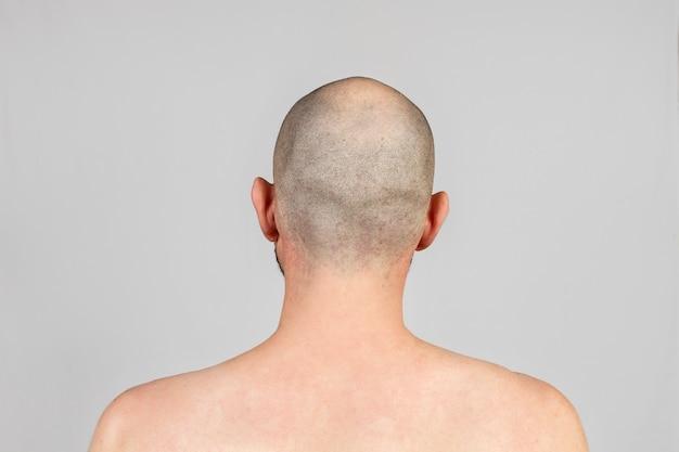 남성 탈모증. 대머리의 남자. 배면도. 회색 배경입니다. 공간을 복사합니다.