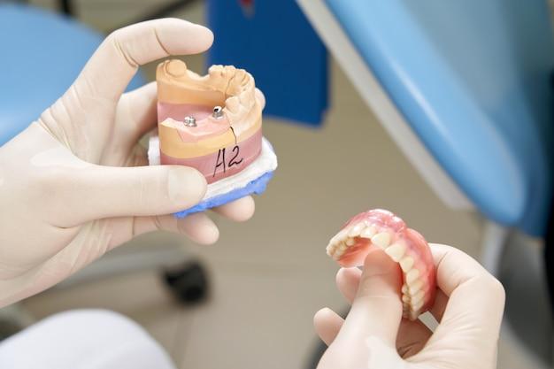 Стоматолог-мужчина показывает своей пациентке зубной имплантат в современной клинике