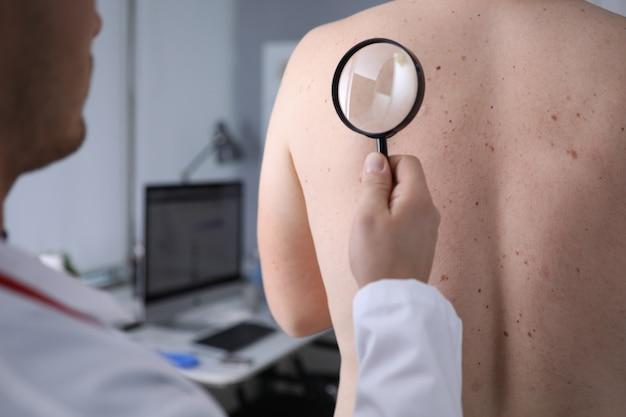 男性医師が患者の肌に虫眼鏡を見て