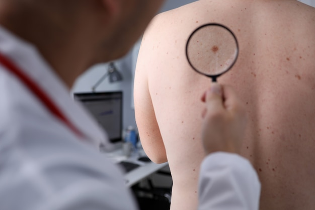 Male doctor look at magnifying glass on patient skin