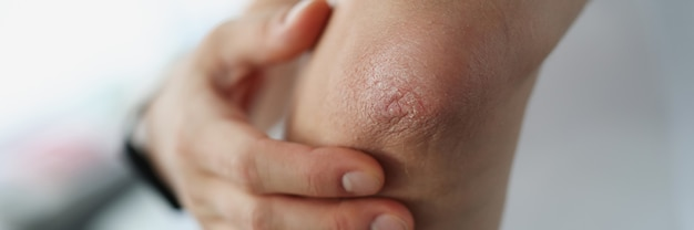 Male elbow and flaky skin and psoriasis