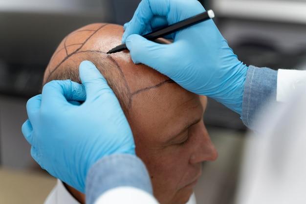 Maschio che attraversa un processo di estrazione dell'unità follicolare