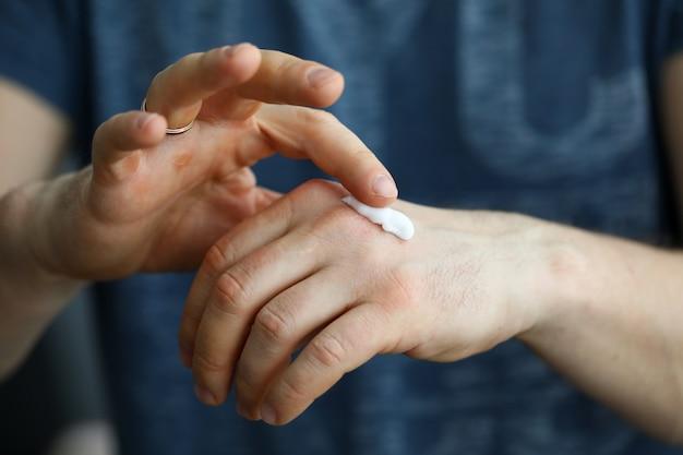 男性の手が肌のクローズアップに保湿クリームを適用します。