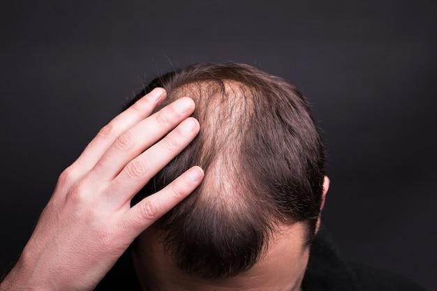 대머리와 남성 머리 클로즈업입니다. 스튜디오 검정색 배경.