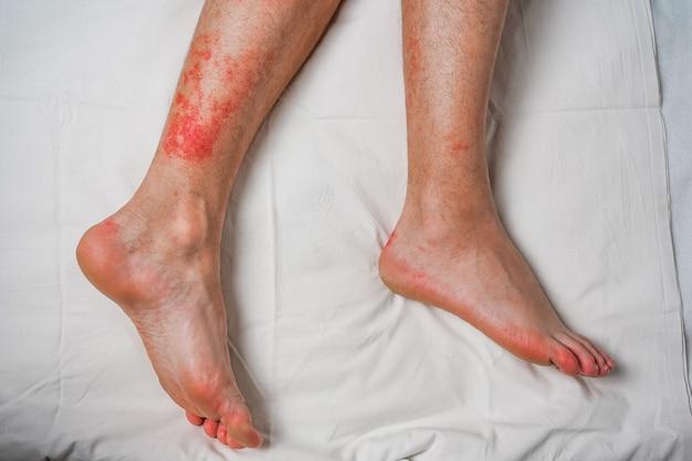 벌레 물림 및 물린 건강 및 의료 감시 및 개념 개발로 인한 남성 다리 가려움증 및 붉은 발진