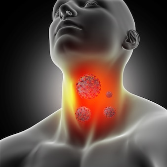 Male medical figure with sore throat and coronavirus cells