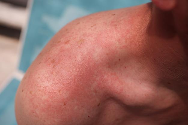 Мужское плечо с сильным солнечным ожогом и крапивницей