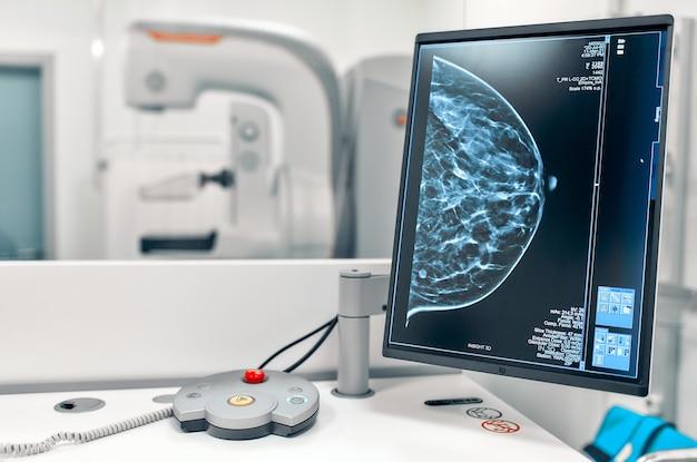 모니터에있는 여성 환자의 유방 유방 조영상 스냅 샷