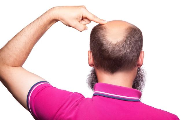 남자 탈모증 대머리 탈모 격리입니다. 손가락으로 대머리를 보여주는. 스튜디오 촬영. 흰색에..