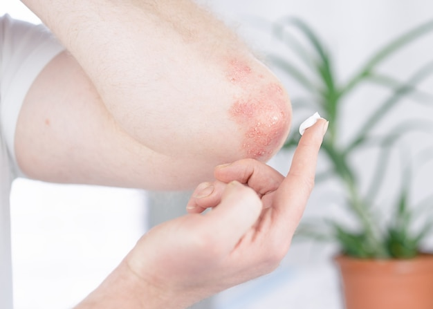A man applies a cream to the elbow affected by psoriasis