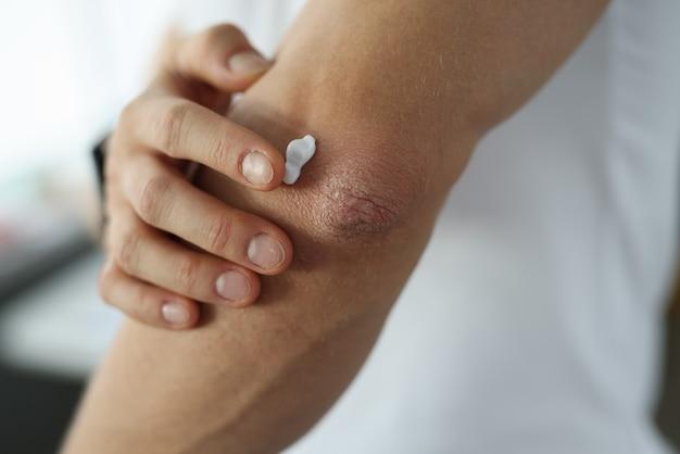 肘のクローズアップの損傷した皮膚に保護クリームを適用する男