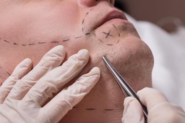 Процедура мужской красоты, имплантат волос бороды для пожилого мужчины