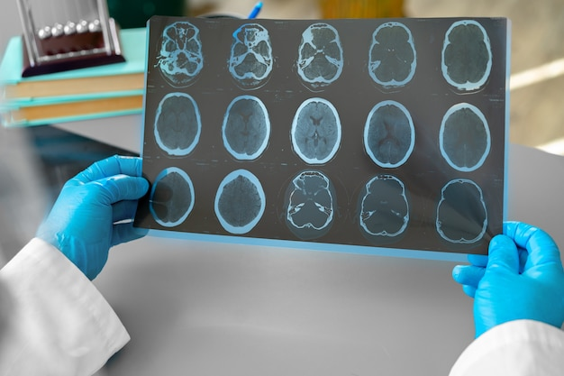 Man doctor examining head mri while sitting at the table in hospital close up