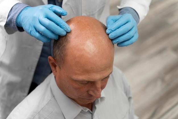 Uomo che attraversa un processo di estrazione dell'unità follicolare
