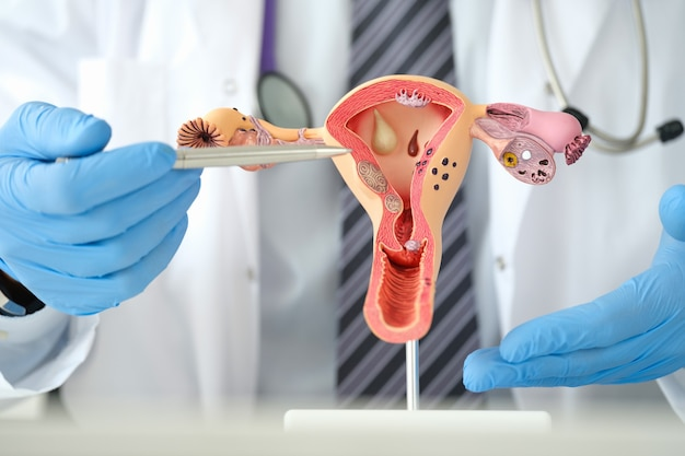 Man gynecologist showing female diseases with pen on plastic artificial model of uterus and ovaries ...