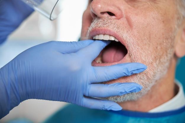 歯科医の予約で口を開けている男
