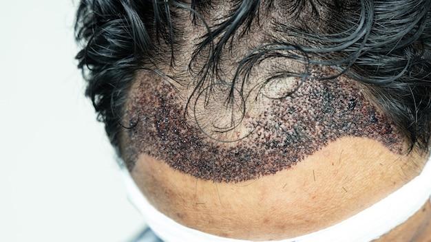 Man head with hair transplant surgery