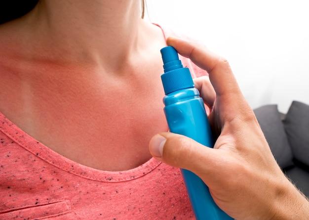 男は日焼けした女性の肌に日焼け止めクリームを塗っています