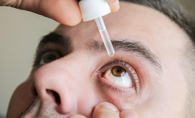 男は彼の目に滴を入れています。医療の概念。アレルギー性結膜炎の問題。