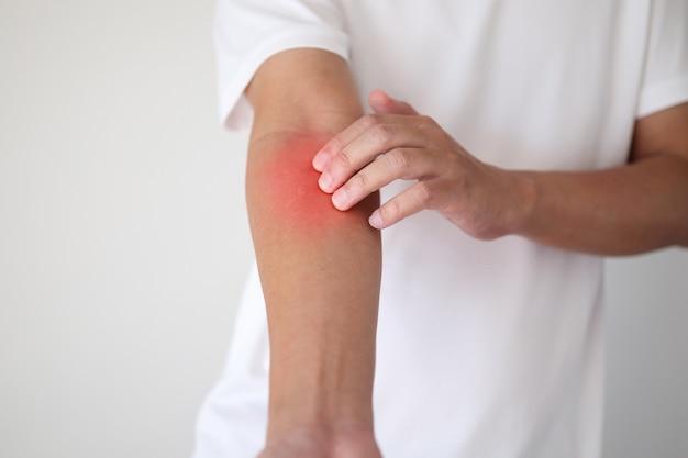 かゆみを伴う乾燥肌湿疹皮膚炎による腕のかゆみと引っかき傷