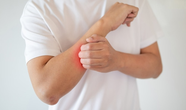 Мужчина зуд и царапины на руке от зудящей сухой кожи, экземы, дерматита