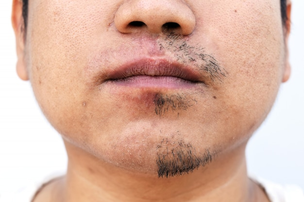 Man pulled mustache by tweezers on white background