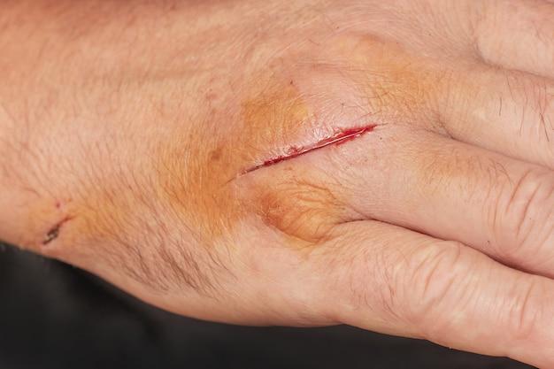 切り傷のある男の手