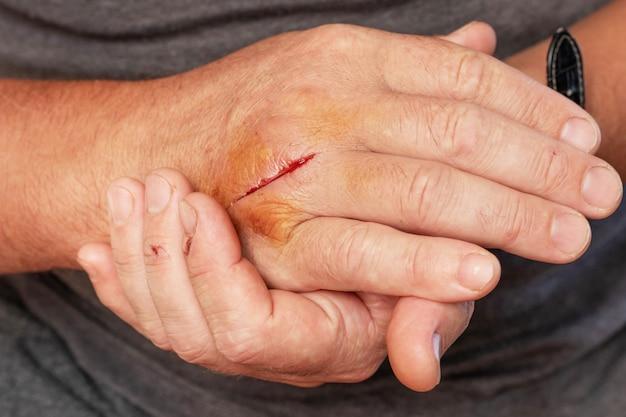 상처 입은 남자의 손