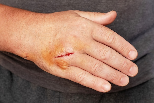 Man's hand with a cut wound