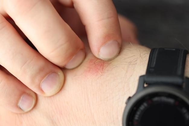 Man scratches red spot on wrist closeup
