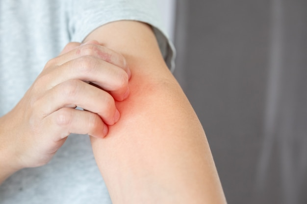 Человек царапает руку