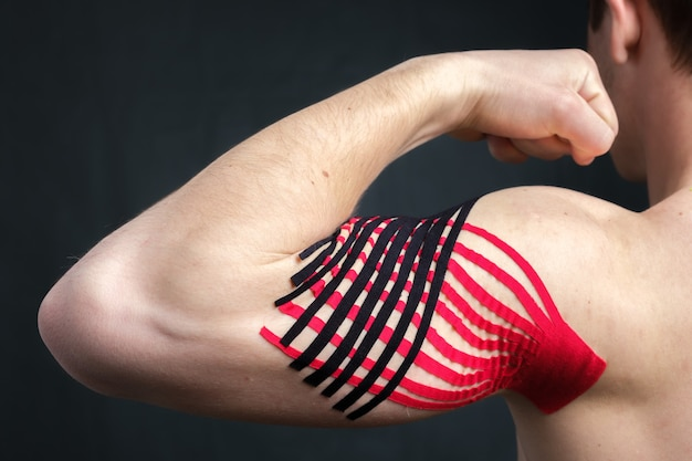 Man showing bicep with kinesiology medical tape applied to relieve pain