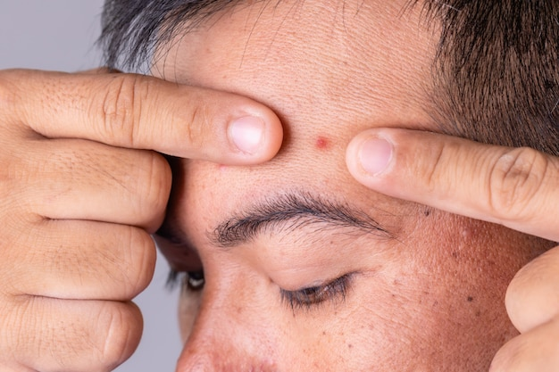 Man showing pimple on forehead