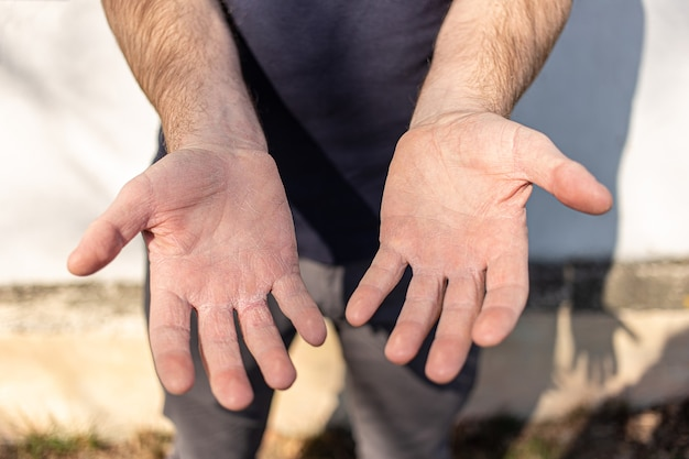 Мужчина показывает очень сухие руки, отслаивающиеся из-за мытья рук спиртом