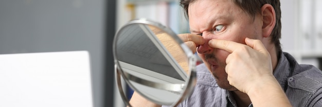 男は鏡の前に座ってにきびを押しつぶします