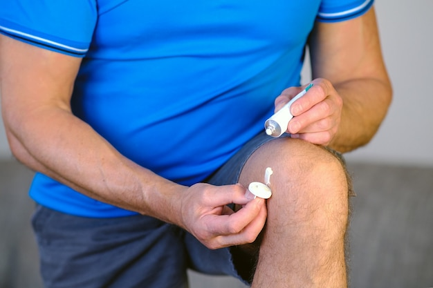 Мужчина мажет больное колено мазью для суставов.
