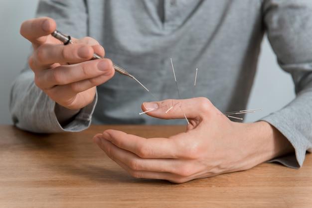 Человек использует лечение иглоукалыванием для облегчения боли