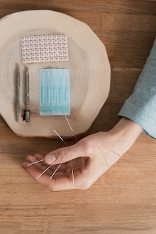 Man using acupuncture treatment for pain relief