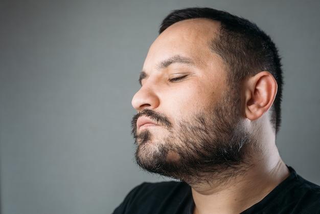 Человеку с областью облысения в бороде все плохо