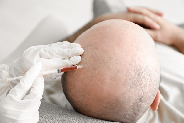 Man with hair loss problem receiving injection in clinic